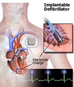 Manual defibrillators